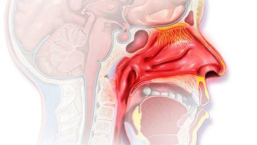 Сильная головная боль может спровоцировать болезнь ЛОР-органов