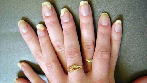 Лечение грибка на ногтях