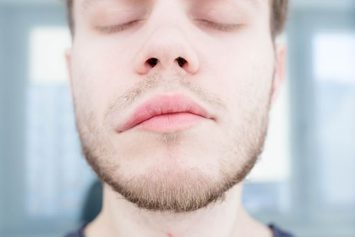 Отек Квинке - классификация, причины, симптомы